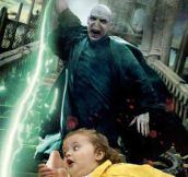 How Voldemort Lost His Nose
