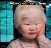 An albino kid from China…