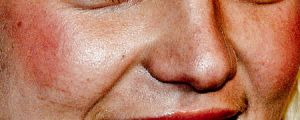 Apparently Celebrities Aren't That Pretty — 20 Celebrity Close-Ups