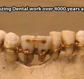 Vintage dental work…