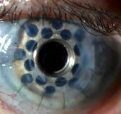 Prosthetic cornea…
