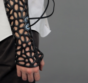 This 3D-Printed cast uses ultrasound to heal bones 40% faster