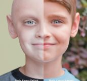Then and now: Cancer patient vs survivor