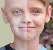 Then And Now: Cancer Patient Vs. Cancer Survivor
