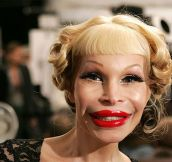 Plastic Surgery Gone VERY VERY Wrong…(14 Pics)