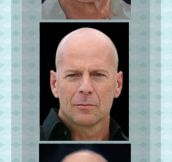 Evolution Of A Bald Man