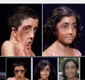Zubaida Hasan's Amazing Face Reconstruction