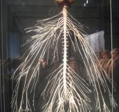 The Amazing Nervous System