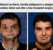 This Surgeon Did A Fantastic Job