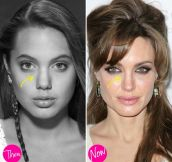 15 Celebrities That Deny They've Had Plastic Surgery