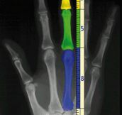 Our Hands And The Fibonacci Sequence