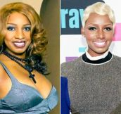 10 Celebrities Who Deny Having Plastic Surgery But Clearly They Did