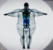 The X-Ray Of A 900 Pound Man