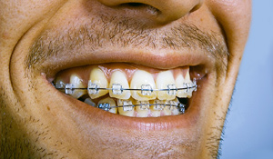 adult-braces. Previous Image