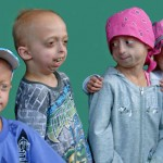 progeria-syndrome