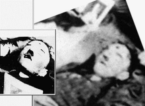 hitler dead from suicide 10 Theories Explaining Hitlers Death