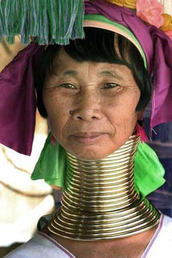 neck rings2 The 10 Most Weird Body Deformation Practices