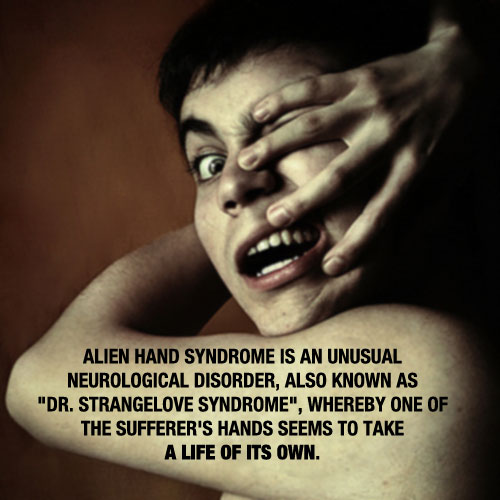 Alien Hand Syndrome 20 Mind Blowing Facts You Probably Didnt Know