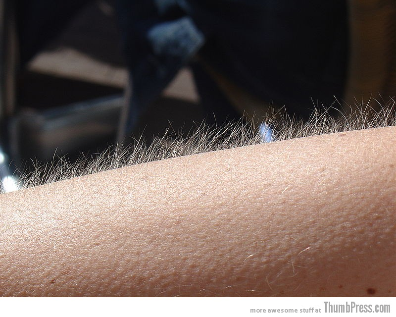 Getting goosebumps from music