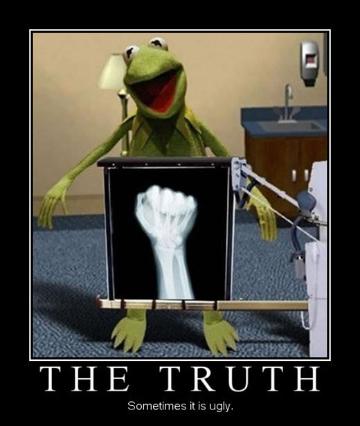 funny-Kermit-radiography-Muppets-doctor
