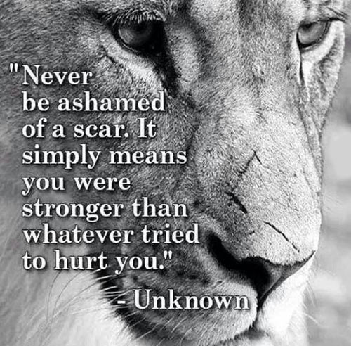 Never be ashamed of a scar…