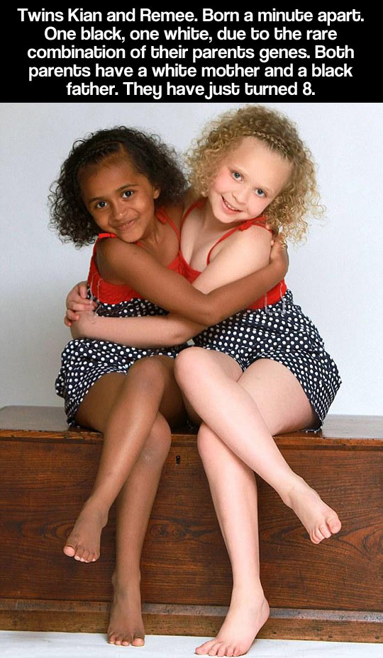 funny-twins-kids-white-black