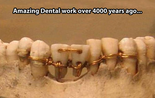 funny-tooth-dental-work-old