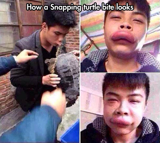 funny-snapping-turtle-lips-bitten