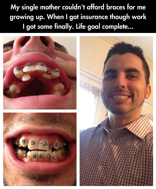 Braces Quotes: It's Totally Worth It