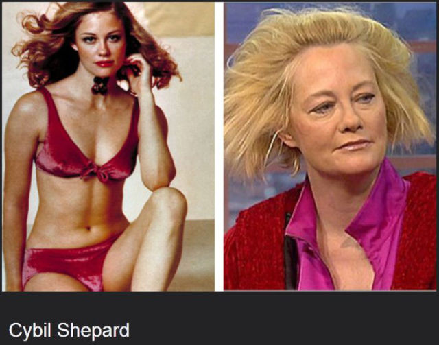 celebs_who_are_not_aging_very_well_at_all_640_11