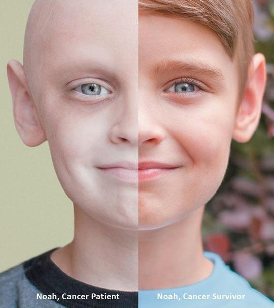 Then And Now: Cancer Patient Vs. Cancer Survivor