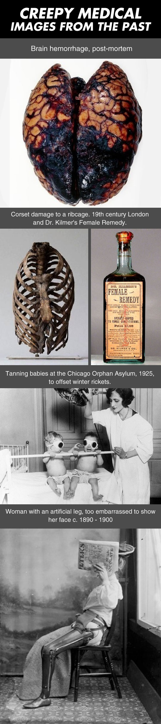 cool-creepy-medical-images-past