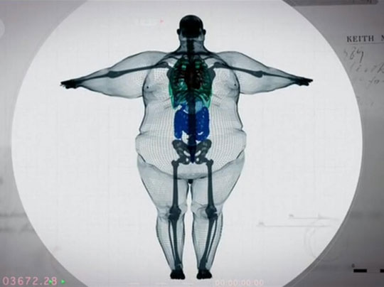 X-Ray Of A 900 Pound Man