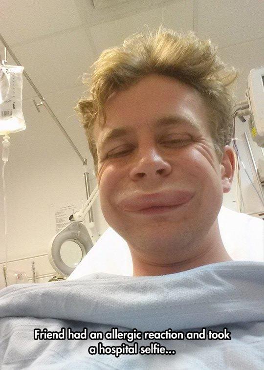 funny-allergic-reaction-friend-selfie
