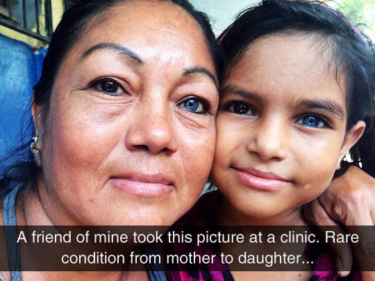 funny-mother-daughter-clinic-heterochromic