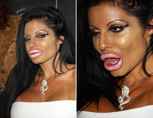 plastic_surgery_fails_3