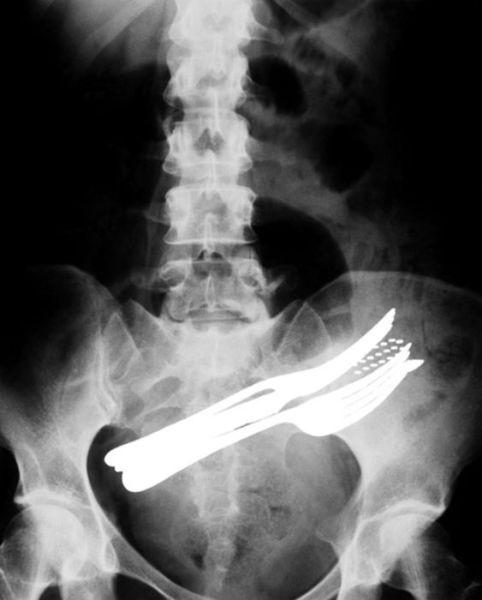 X-Rays-4