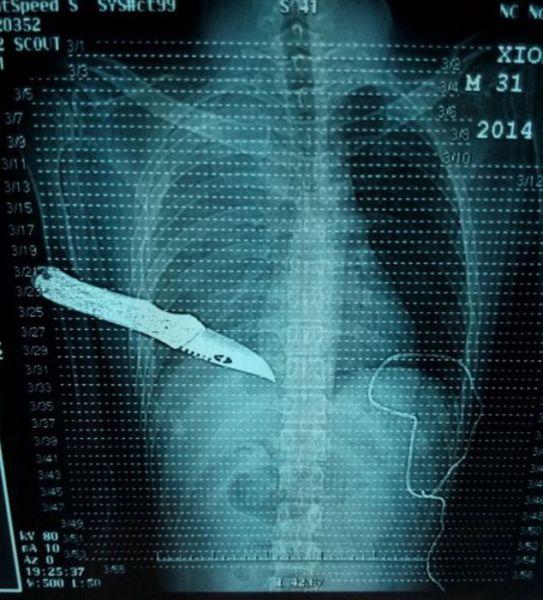 X-Rays-5
