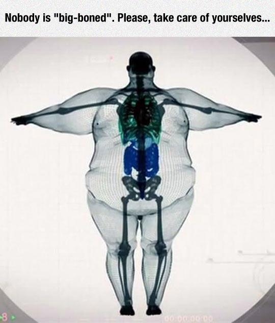 funny-bone-fat-people-xray