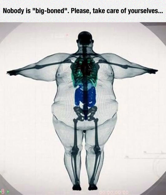 There Is No Such Thing As Big Boned