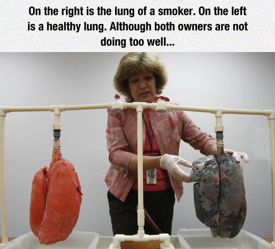 The Lung Of A Smoker And A Healthy Lung