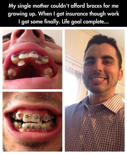Cute Braces Quotes: Life Goal Complete
