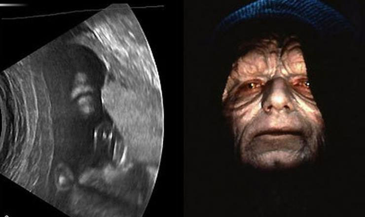 emperor-palpatine-sonogram