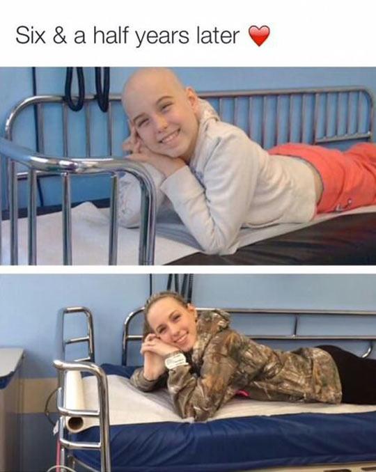 funny-six-half-years-later-bald