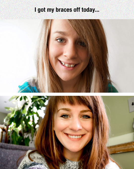cool-girl-braces-before-after