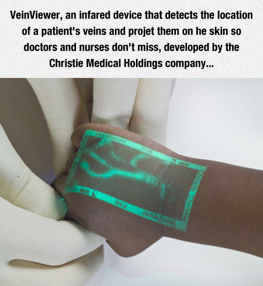 Clever Medical Invention: The VeinViewer