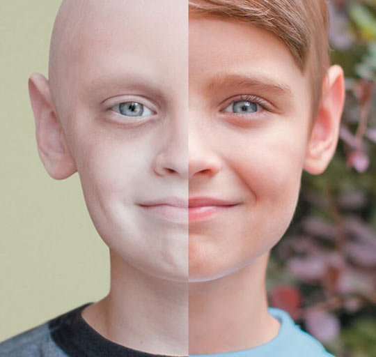 Beating Cancer, Before And After