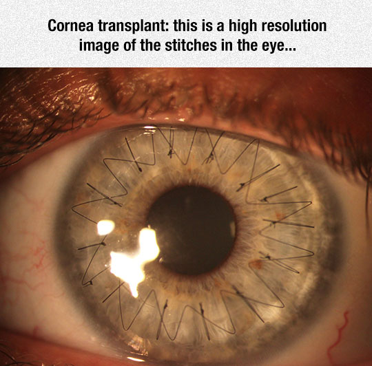 Amazing Eye Surgery Stitches
