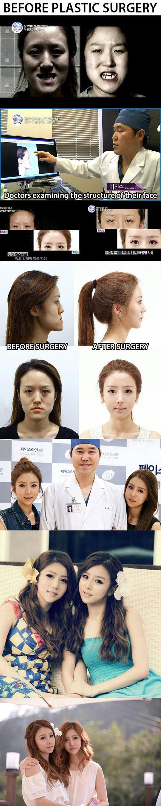 cool-Asian-woman-plastic-surgery