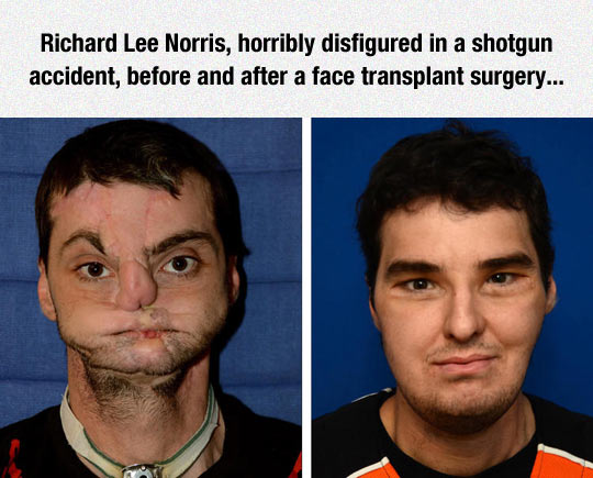 cool-surgery-man-face-transplant